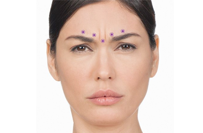 Anti-Wrinkle Injections Brisbane, Image by Laser