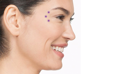 Anti-Wrinkle Injections Aspley Brisbane, Image by Laser