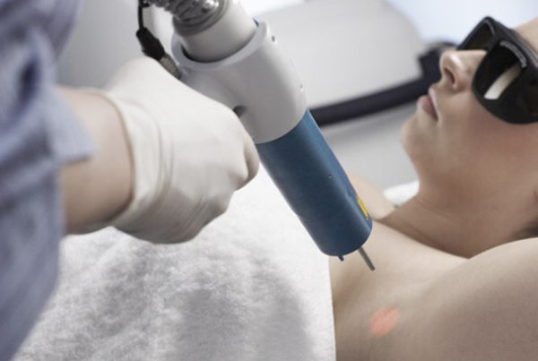 Laser Hair Removal Brisbane, Image by Laser