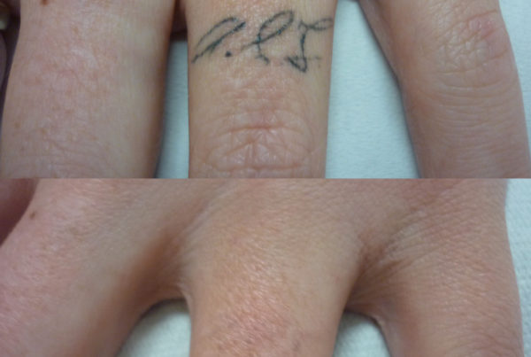 Laser Tattoo Removal Brisbane, Image by Laser