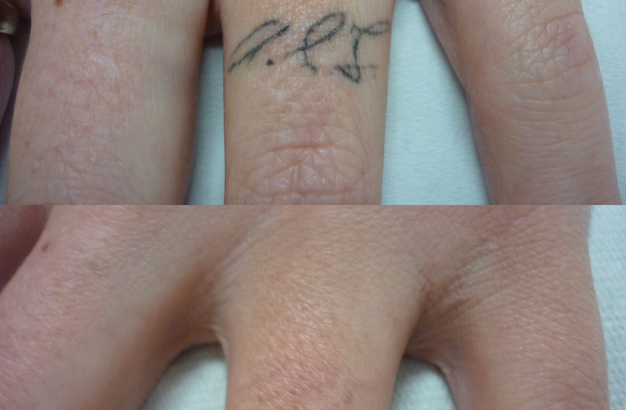 Non-Laser Tattoo Removal and It's Risks and Side Effects When Compared With Laser Tattoo Removal