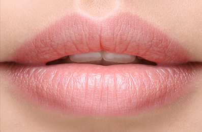 Lip Filler Brisbane, Dermal Filler Brisbane, Image by Laser