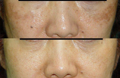 Image by Laser – Facial Lase