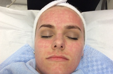 Image by Laser - Fractional Skin Resurfacing