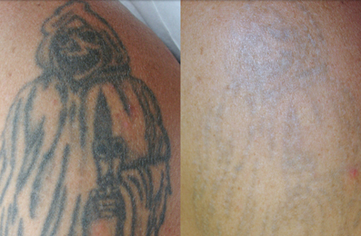 Before and After Laser Tattoo Removal by Image by Laser