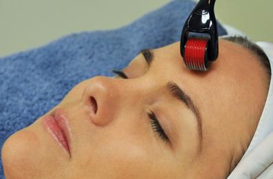 Image by Laser – Skin Needling Dermal Roller