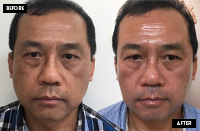 Cosmelan Depigmentation Peel, Skin Treatments Brisbane, Image by Laser
