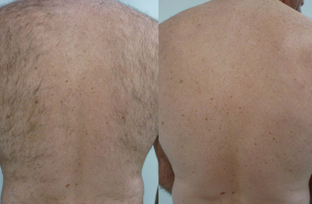 Laser Hair Removal for Men, Men's Laser Hair Removal Brisbane, Brisbane Laser Hair Removal, Image by Laser