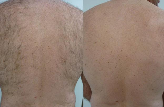 Laser Hair Removal for Men, Men's Laser Hair Removal Brisbane, Brisbane Laser Hair Removal, Image by Laser