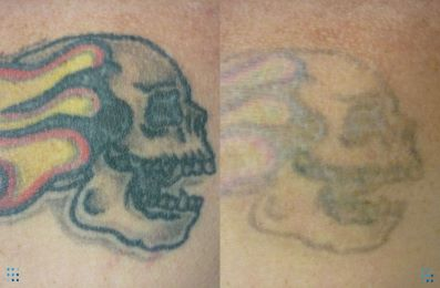 Coloured tattoo removal before and after Brisbane