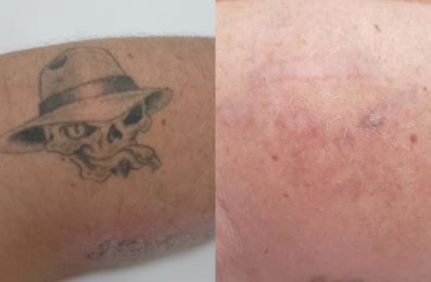 Laser Tattoo Removal Brisbane